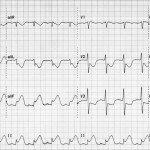 Akut inferior STEMI