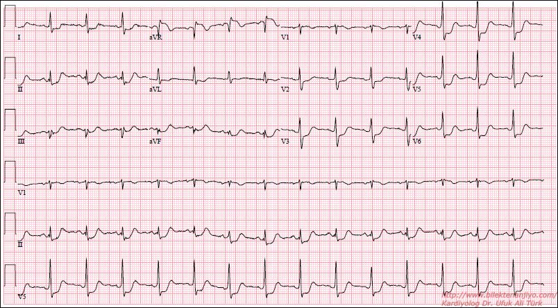 Как сделать экг сердца 2