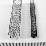 stent-1