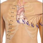 Göğüs Elektrodları