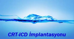 CRT-ICD