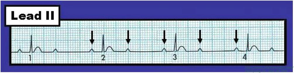 Kalbin Elektrik Sistemi Bozuklukları