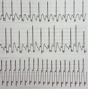 Kalbin Elektrik Sistemi Bozuklukları Atriyal Flutter - 1:1 Geçişli