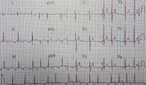 Kalbin Elektrik Sistemi Bozuklukları Atriyal Taşikardi