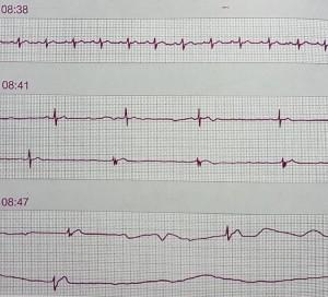 Kalbin Elektrik Sistemi Bozuklukları Sinüs Arrest
