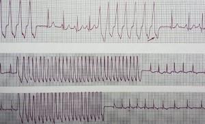 Kalbin Elektrik Sistemi Bozuklukları Ventriküler Taşikardi