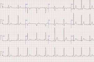 Kalbin Elektrik Sistemi Bozuklukları WPW Sendromu